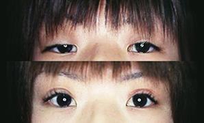 眼瞼 下垂 性 先天
